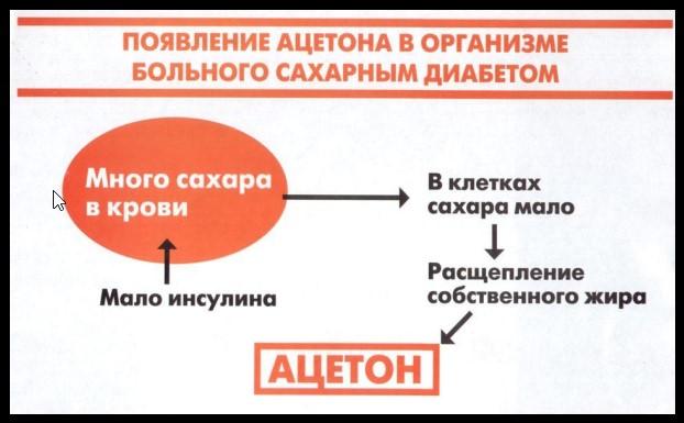 Появление ацетона в организме человека
